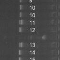 DNA-Kønstest